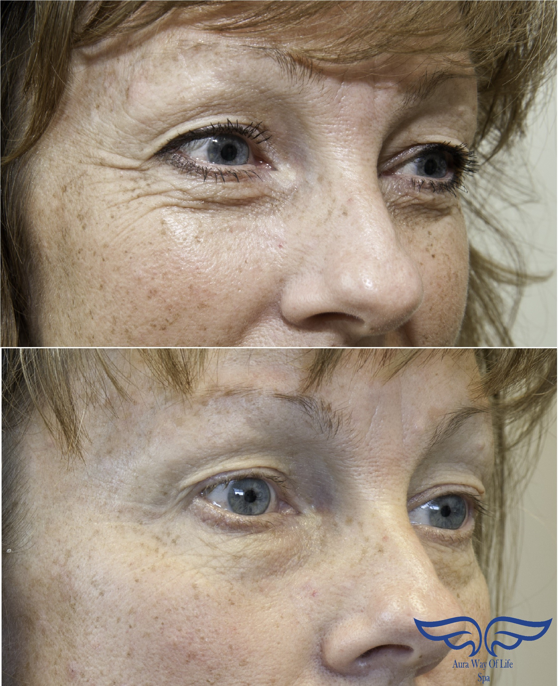 Exilis Before and after eyes Orange County