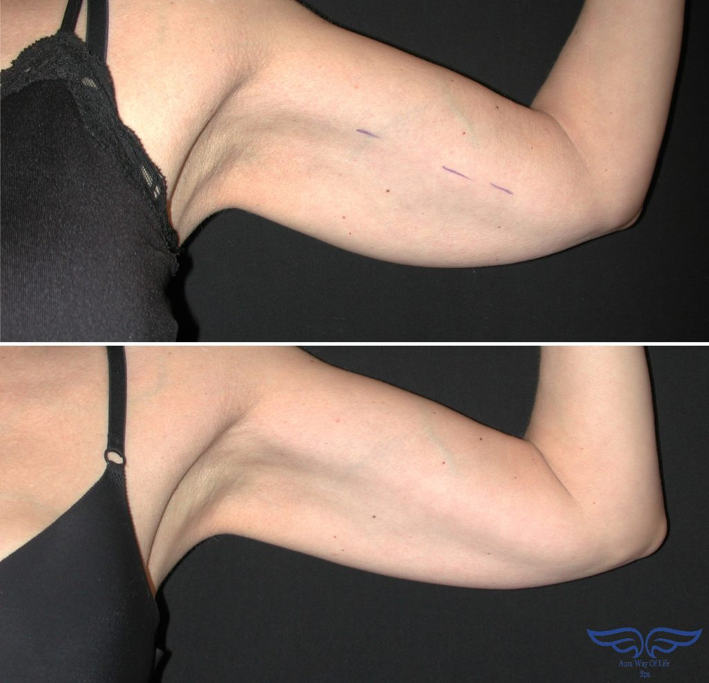 exilis skin tightening in orange county before after arm