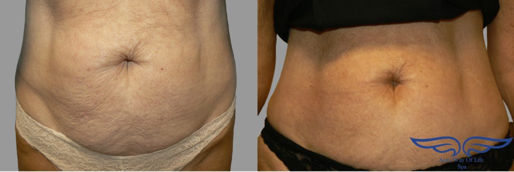 Exilis Skin Tightening in Orange County Before After Stomach