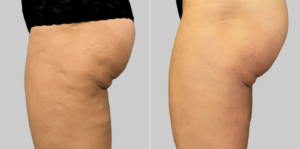 exilis treatment in orange county buttocks thighs