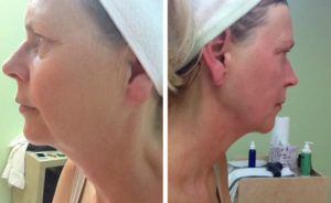 exilis cost in orange county jaw chin